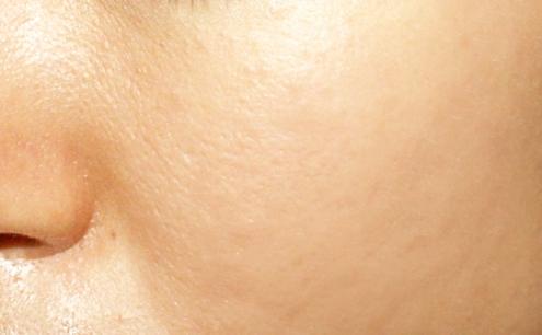 激光去痘印前后图片