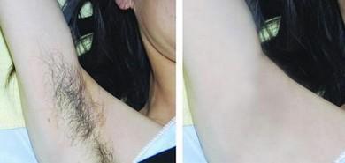 激光脱毛前后对比