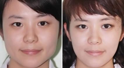 激光瘦脸的原理是什么_首先我们来了解一下瘦脸针的瘦脸原理.