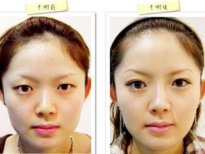 选择韩式微创双眼皮的理由