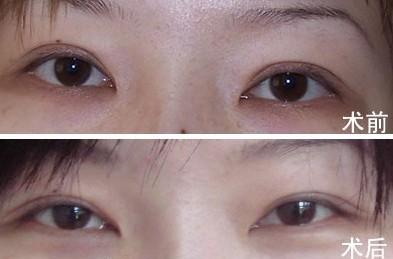石家庄双眼皮术后疤痕修复效果好不好 对比图