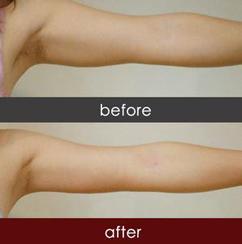 价格吸脂减肥手术臀部大约是塑身隆胸带睡不着图片