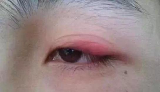贴双眼皮贴能变成双眼皮吗